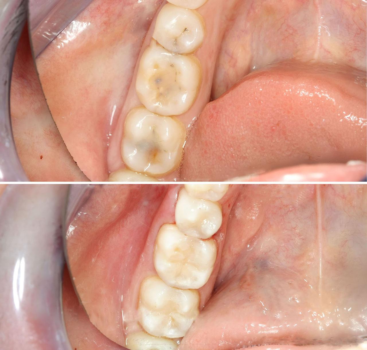 картинка пломба для зуба меню